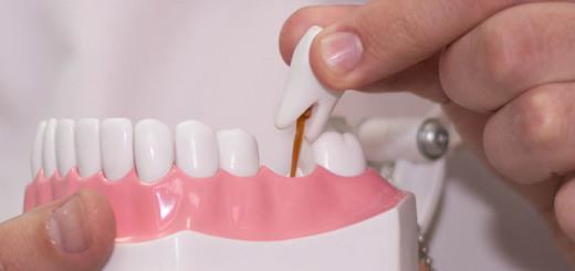 сонник, выпадение зубов во сне