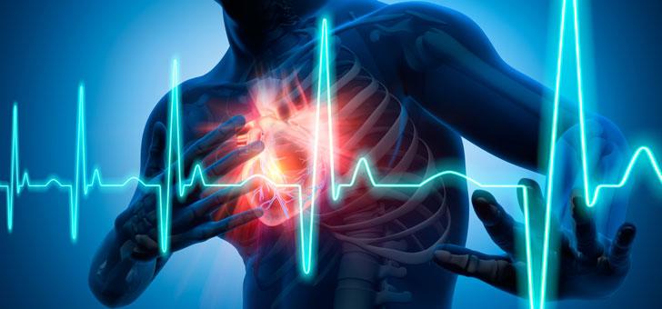 инфаркт миокарда лечение
