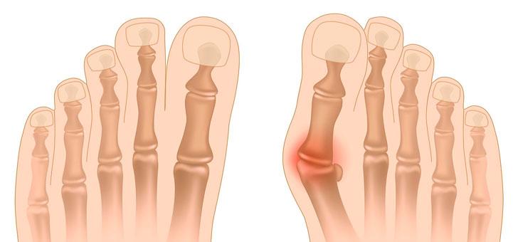 Ревматоидный артрит. Лечение народными средствами