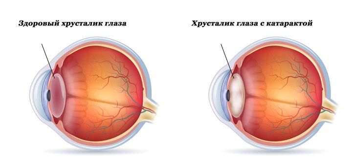 катаракта лечение народными средствами